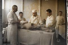 France, Moreuil, Hôpital d'évacuation de Moreuil. Blessures produites par les éclats d'obus